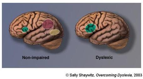 cerebro-dislexia