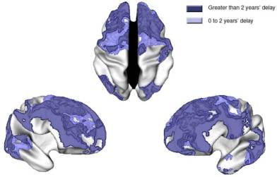 tdah-maduracion-cerebral
